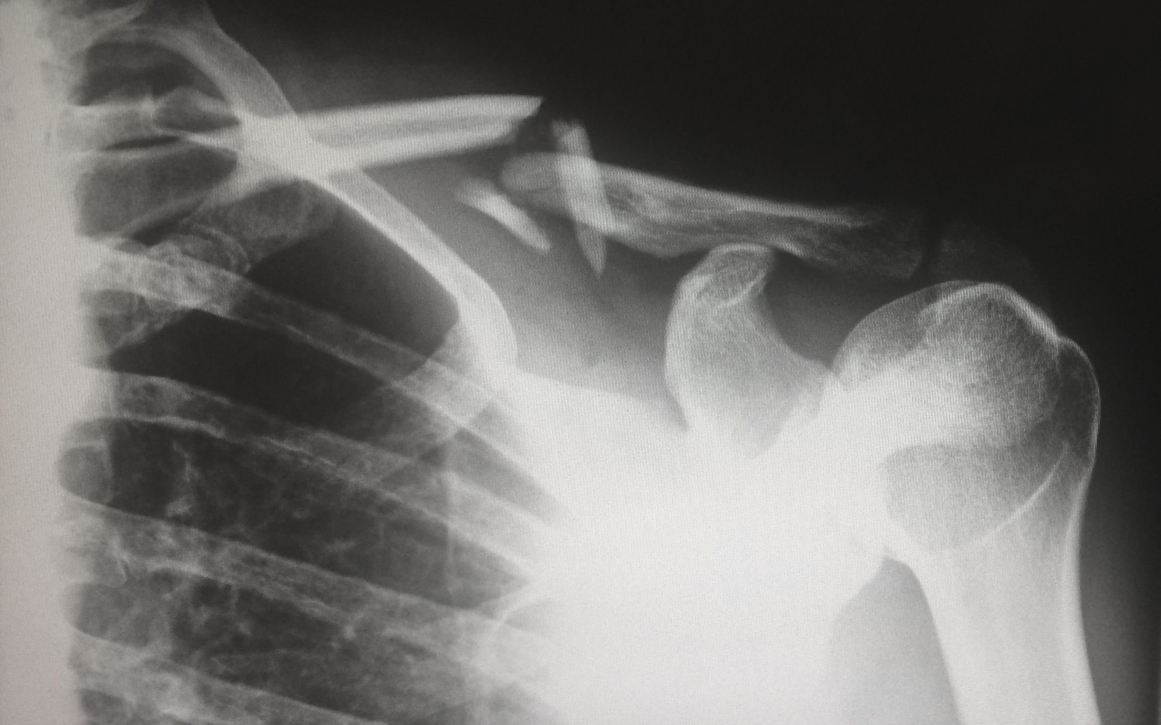 x-ray of broken collar bone